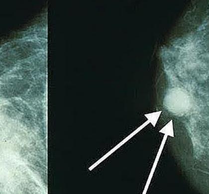 Ácidos grasos en la mama predicen riesgo de cáncer tras la menopausia